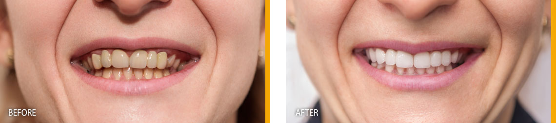 Dentures Treatment Before & After Results - East Gwillimbury, ON